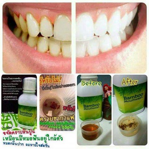 น้ำยาบ้วนปาก แบมบู Bamboo mouthwash ของแท้100% สินค้ามีพร้อมส่ง